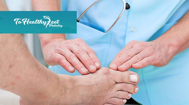 Bunion Surgery NYC, Best Podiatrist NYC, Bunion Surgery