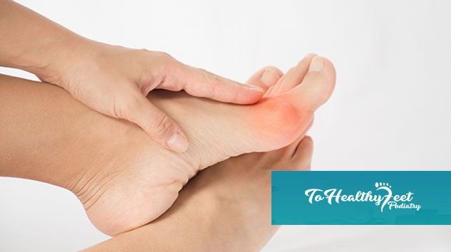 The Pros and Cons of Bunion Surgery