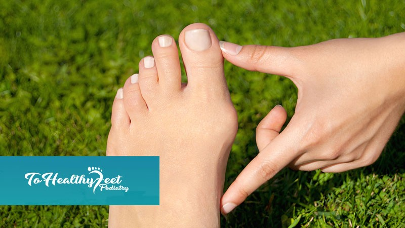 Bunions causing you agony? At To Healthy Feet, we can help you diagnose and treat your debilitating foot conditions! - To Healthy Feet Podiatry