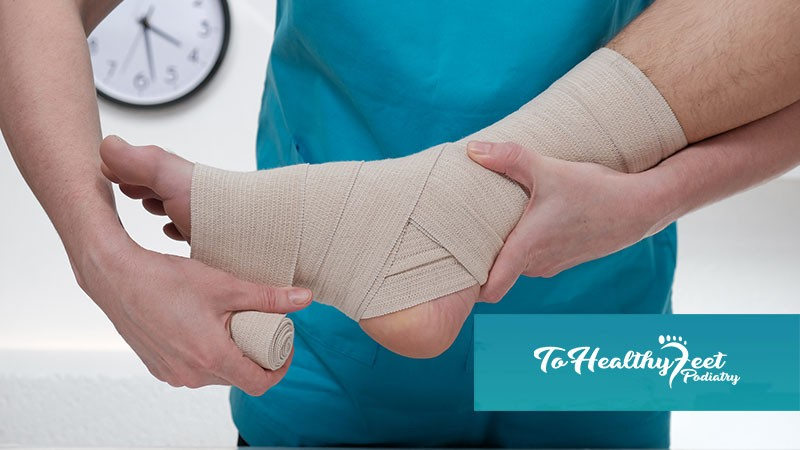 Your Complete Guide To An Ankle Sprain Recovery | Best Podiatrist New York
