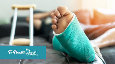 Life After Bunions - A Post Bunion Surgery Recovery Guide